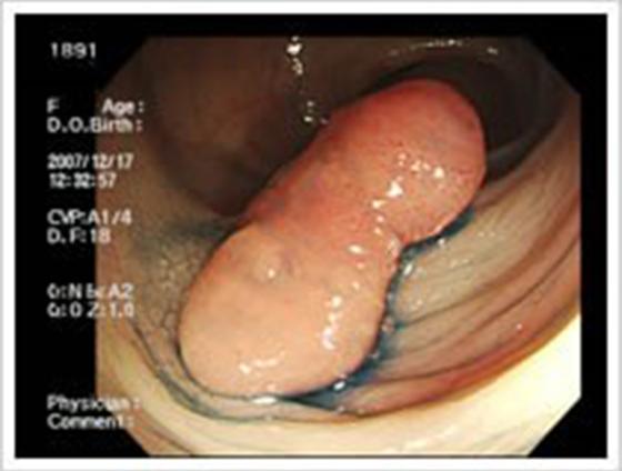 大腸がんの切除手術の流れ1